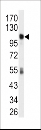 GTX81273 - ALDH1L1 / FTHFD