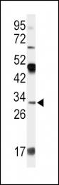 GTX81463 - Apolipoprotein D (Apo D)