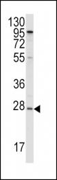 GTX81467 - Apolipoprotein A I (APO AI)