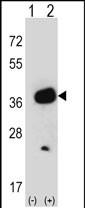 GTX81481 - GMP reductase 1 / GMPR1
