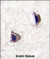 GTX81562 - Neuronal pentraxin-1