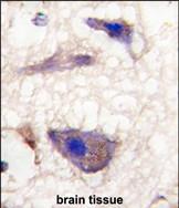GTX81563 - Neuronal pentraxin-1