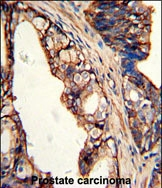 GTX81652 - Transglutaminase-4 (TGM4)