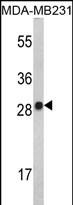 GTX81656 - Interleukin-2 / IL2