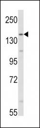 GTX81766 - Aldehyde oxidase