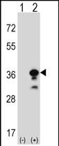 GTX81831 - Granzyme B (GZMB)