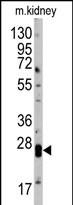 GTX81902 - Claudin-1 / CLDN1