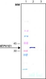 GTX82325 - ATP6V1E1