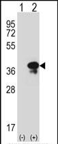 GTX82488 - Syntaxin 3 / STX3