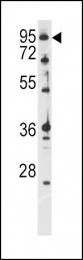 GTX82496 - Ataxin-1