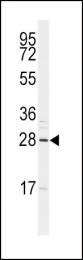 GTX82509 - SNAI1