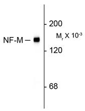 GTX82643 - Neurofilament  M (160 kD)