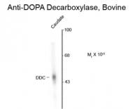 GTX82711 - AADC / DDC