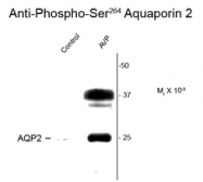 GTX82735 - Aquaporin-2