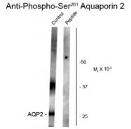 GTX82736 - Aquaporin-2