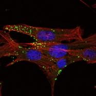 GTX82766 - Kelch-like 1 protein