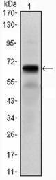 GTX82794 - PTH Receptor 1