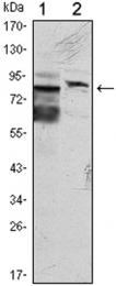 GTX82811 - Kelch-like protein 11