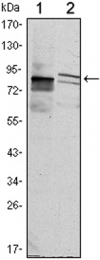 GTX82812 - Kelch-like protein 11
