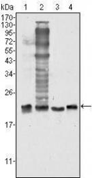 GTX83012 - Superoxide Dismutase 1 / SOD1