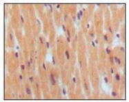 GTX83061 - Natriuretic peptides B