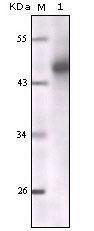 GTX83079 - Cytokeratin 5