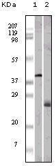GTX83082 - Apolipoprotein M (Apo M)