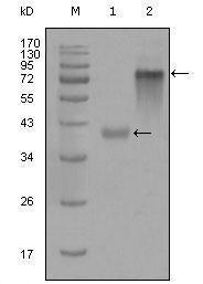 GTX83099 - Cytokeratin 19