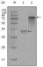 GTX83113 - Cytokeratin 19