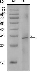 GTX83141 - Coagulation factor VIII (F8)
