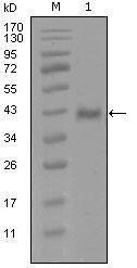 GTX83145 - Androgen receptor