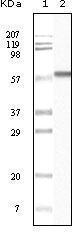 GTX83152 - Casein kinase I alpha