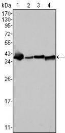 GTX83217 - Nucleophosmin