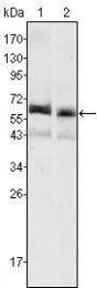 GTX83261 - Alpha-fetoprotein / AFP