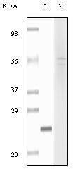 GTX83293 - Fibulin-5