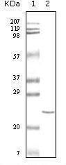 GTX83347 - Cardiac Troponin I