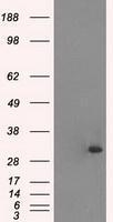 GTX83501 - Cardiac Troponin I