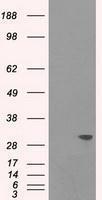 GTX83502 - Cardiac Troponin I