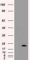GTX83503 - Cardiac Troponin I