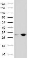 GTX83574 - Sepiapterin reductase / SPR