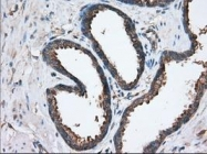 GTX83597 - Sorting nexin-9 (SNX9)