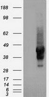 GTX83660 - Alpha-1-antitrypsin