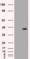 GTX83661 - Alpha-1-antitrypsin