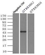 GTX83662 - Alpha-1-antitrypsin