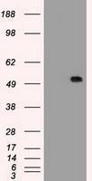 GTX83663 - Alpha-1-antitrypsin