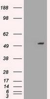 GTX83664 - Alpha-1-antitrypsin