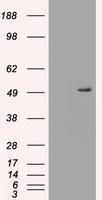 GTX83665 - Alpha-1-antitrypsin