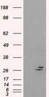 GTX83800 - Prolactin / PRL