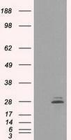 GTX83802 - Prolactin / PRL
