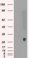 GTX83828 - Peroxiredoxin-4 / PRDX4